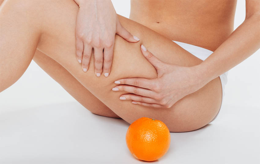 traitement contre la cellulite